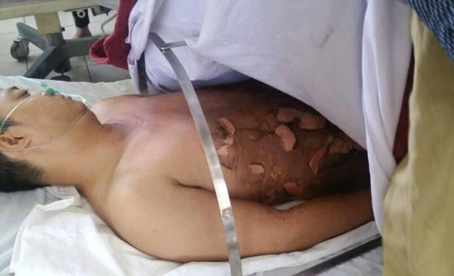 Một thanh niên bỏng nặng khi đang đổ xăng