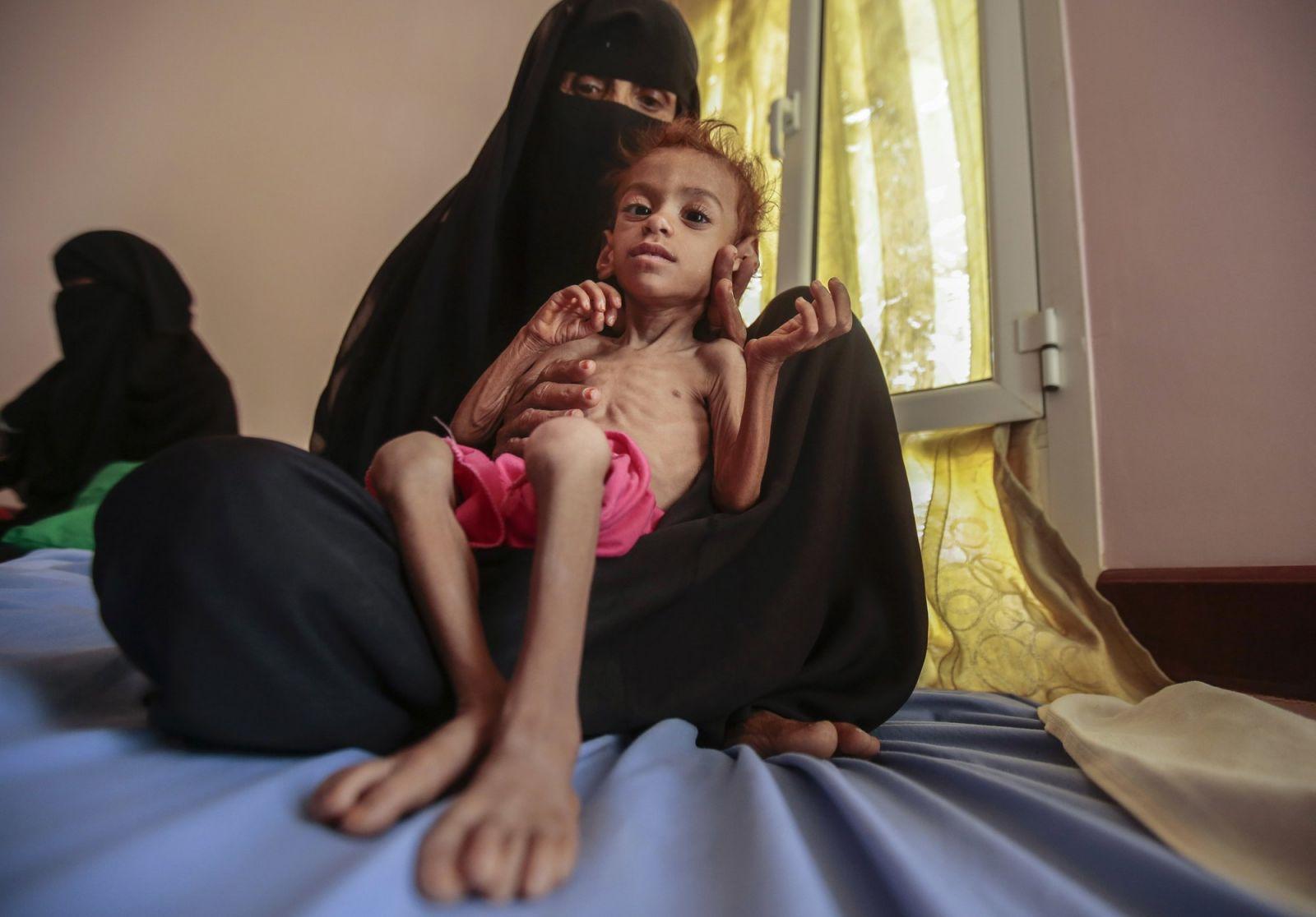 Cơn ác mộng chưa có hồi kết ở Yemen